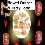 New Study: Bowel Cancer connected with Consumption of High Fat Food