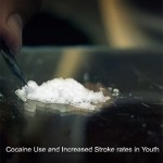 New Study reveals use of Cocaine puts youngsters at increased stroke risk