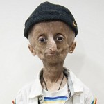 Fifteen- years- Old Indian boy- Nihal Batla, being patient of Progeria, dies